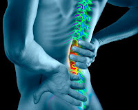 herniated disc, extreme low-carb diet